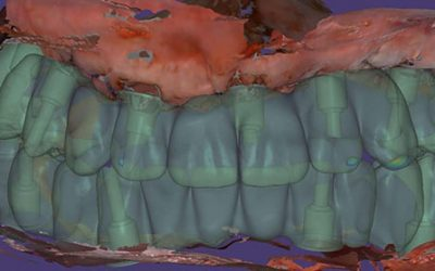 Teeth extraction and implantation for immediate loading