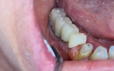 New Bridge made easy thanks to the screw retained system